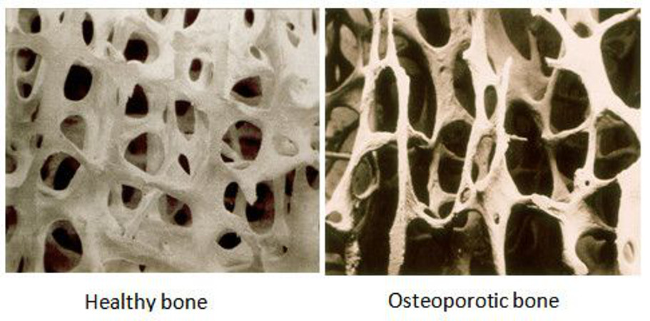 osteoporosisespumainyectable2